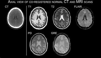 cat scan vs mri mri vs ct scan which one is better for brain imaging