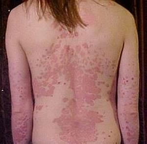 Kardashian psoriasis treatment