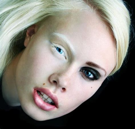 17 Best Images About Albinismo On Pinterest Albinism