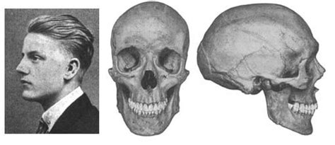 Nordic—the Skull Of A Member Of The Nordic