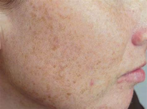 Best laser for skin texture