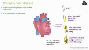 Gcse Biology Cardiovascular Disease  Edexcel 9-1