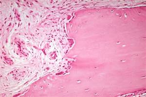 Medical Pictures Info  U2013 Bone Cell