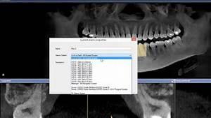 Cerec Implantology