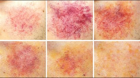 bruise colors the stages of a bruise