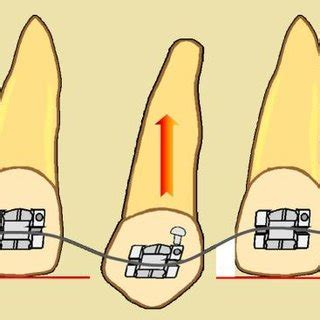Tooth Movement Diagram by The Biology Of Tooth Movement17 Scientific Diagram