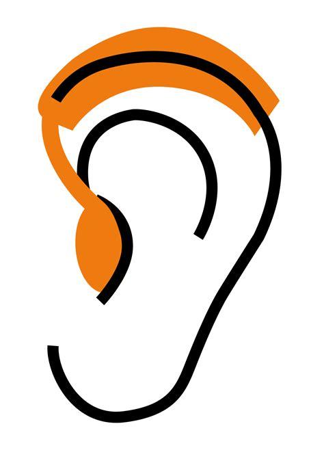 prothese auditive contour ou prothese auditive intra