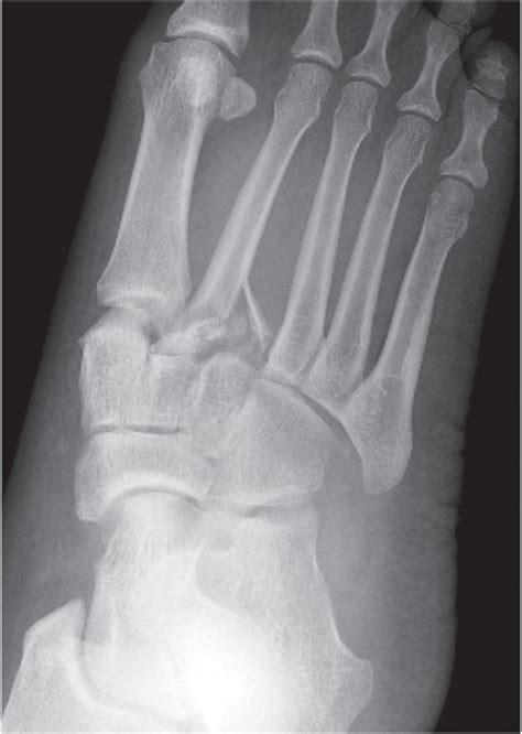 year  female presented   foot  ankle