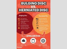 Bulging Disc & Back Pain 7 Natural Treatments That Work