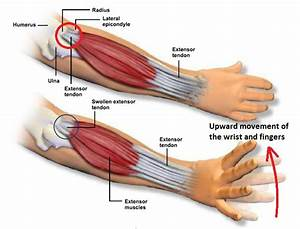 What Is Tennis Elbow  U2013 Osteopathy Singapore