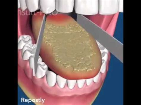 mundgeruch ursachen und therapie youtube