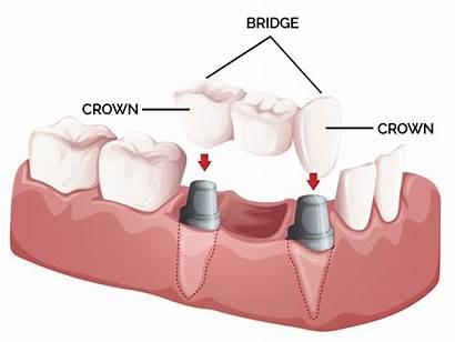 Crowns Dental Bridge Tooth Bridges Teeth Implant