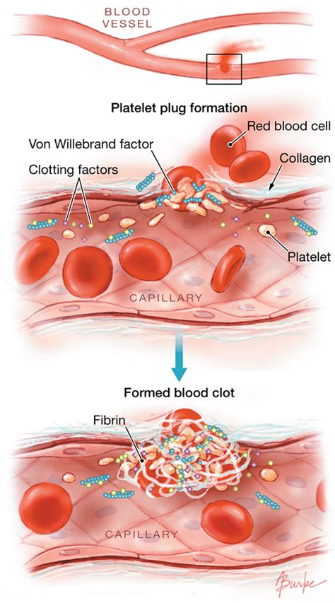 bleeding disorders coagulation disorders jama