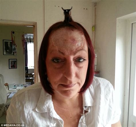 woman  rare cancer     forehead removed