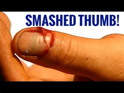 nail bed laceration thumb versus car door fracture nailbed laceration