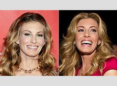 What Happened to Faith Hill's Teeth?! Entertainment Tonight