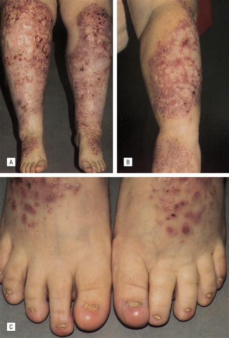 successful treatment  epidermolysis bullosa pruriginosa  topical tacrolimus congenital