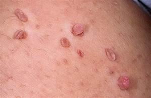 Препараты от папиллома человека 16 тип