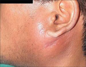 Benign Lymphoepithelial Cysts Of Parotid And Submandibular