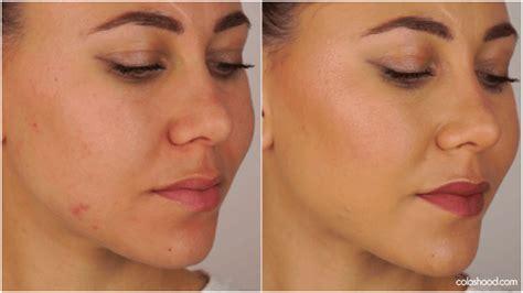 comment faire disparaitre  bouton avec du maquillage