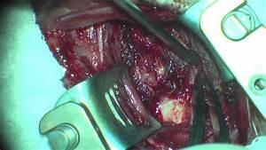 Cirurgia De Fratura E H U00e9rnia De Disco Na Coluna Cervical