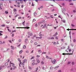 Nephritic: Lupus nephritis Lupus Nephritis