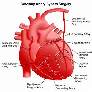 Coronary Artery Bypass Surgery  Expert Care