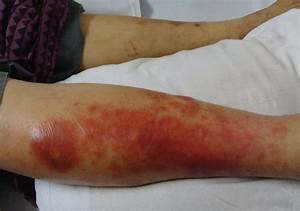 An observational study of cutaneous manifestations in ...