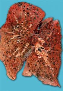 Anthracosis Of The Lung Photograph By Medimage  Science