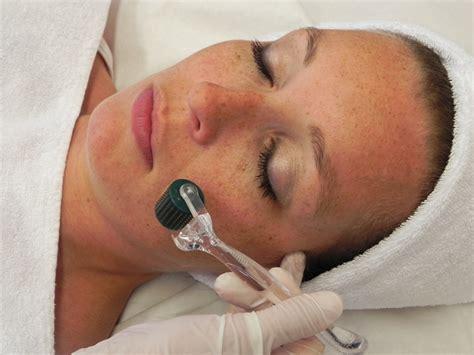 royal beauty clinic dermaroller