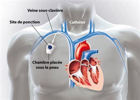 ablation chambre implantable le catheter cancer du larynx var 83