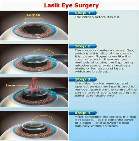 eye surgery images  pinterest eyes laser eye
