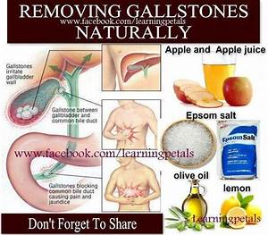 Removing Gallstones Naturally   U2013 Lisanne U0026 39 S Fibro Blog