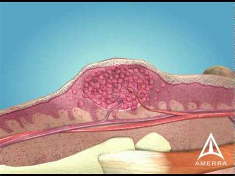 skin warts  medical animation youtube
