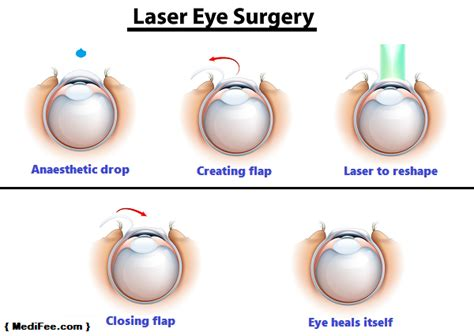 Laser Eye Treatment In India  Risks, Cost And Procedure. Start Bookkeeping Business Best Pos For Ipad. Custom Web Development India. Spastic Cerebral Palsy Symptoms. Free Web Based Remote Access. Loss Of Cervical Lordosis Car Insurance Bronx. How To Become A Pharmacist Guard One Security. Sports Management Career Path. Slab Leaks Covered By Homeowners Insurance