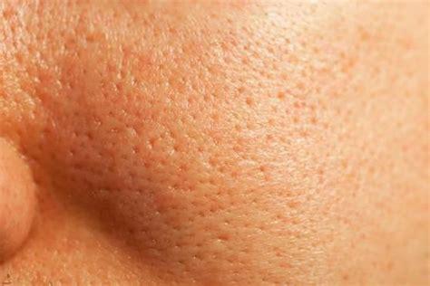 pores of color best 25 clogged pores ideas on acne prone