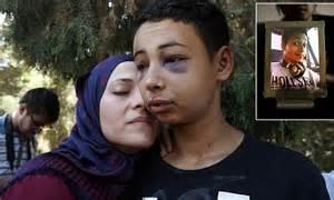 American boy beaten by Israeli police freed on bail ...