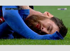 Leo Messi lost a tooth in the tunnel v Real Madrid Video