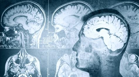 5 Best Forensic Psychology Degrees
