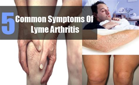 Common Symptoms Of Lyme Arthritis  Tips To Identify. Spirituality Signs Of Stroke. Cascade Decals. Vein Signs Of Stroke. Tie Fighter Stickers. Sand Logo. Blue Elephant Logo. Joinery Logo. Miami Hurricanes Decals