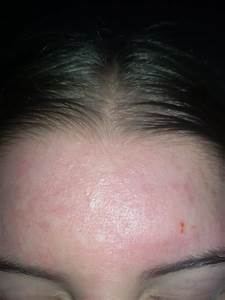 Blackheads and scars on forehead - General acne discussion ...
