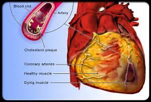 ... of Cardiovascular Disease (CVD) - Cardiovascular Heart Disease Cardiovascular Diseases And Disorders
