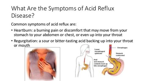 How to treat Acid Reflux and prevent heartburn and chest pain acid re