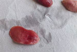Brown Worms In Human Stool Pictures to Pin on Pinterest ...