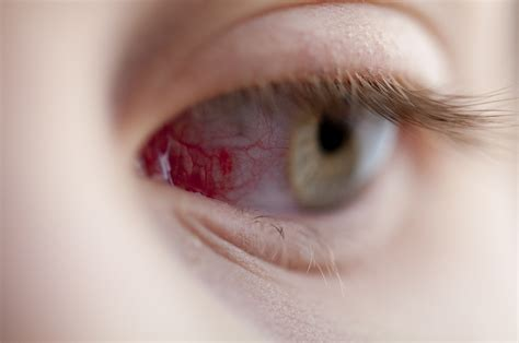 Scratch On Eye Pictures Photos