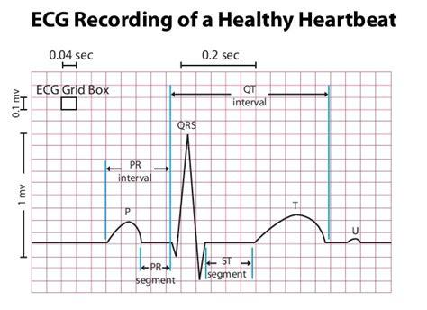 electrocardiogram guide ekg stepwards
