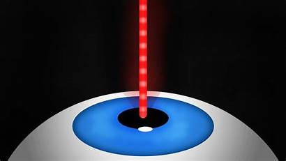 Lasers Vision Super Shooting Eyeballs Got Eyes