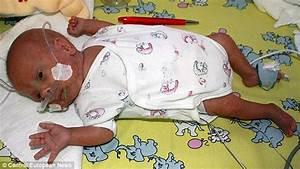 Meet the world's most premature baby: Doctors release ...