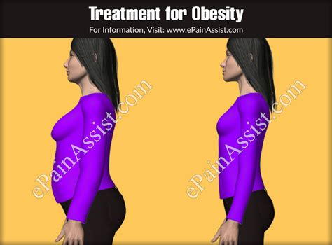 obesityclassificationcausescomplicationstreatment diet