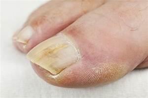 Сколько времени занимает лечение грибка ногтей